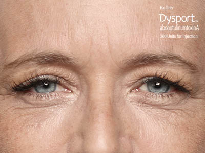 Dysport Nashville, TN, frown lines after 50 units of Dysport (R) treatment, acne treatments, Botox, collagen, Juvederm.