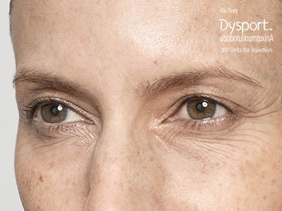 Dysport Nashville, TN, frown lines after 50 units of Dysport (R) treatment, Botox injections, collagen, Juvederm, acne treatments.