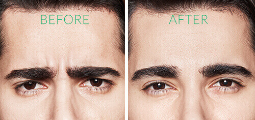 For men: frown lines between the eyebrows before Dysport. For men: frown lines between the eyebrows after Dysport.
