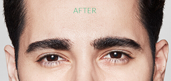 For men: frown lines between the eyebrows after Dysport.