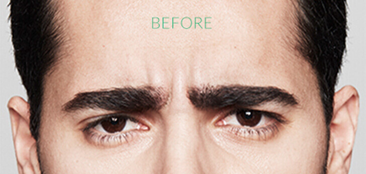 For men: frown lines between the eyebrows before Dysport.