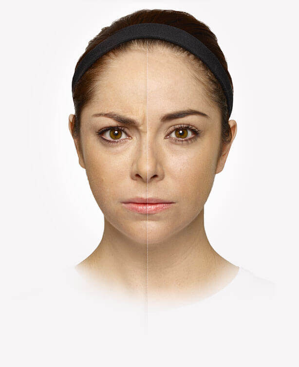 Woman before and after Dysport treatment