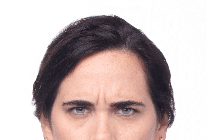Image of a woman before Dysport® treatment.