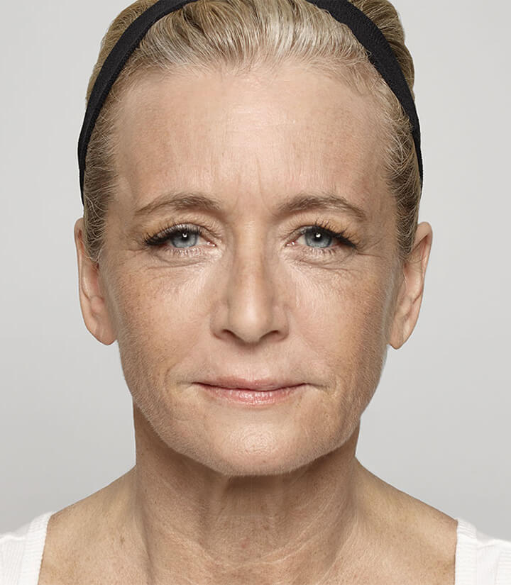 Image of a woman after Dysport® treatment showing results for in between the brow frown lines
